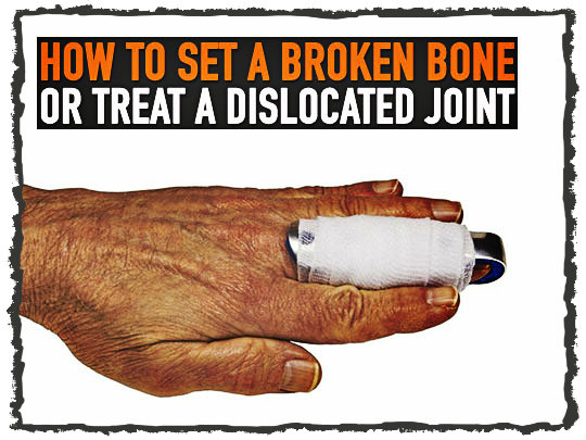 How to Set a Broken Bone or Treat a Dislocated Joint